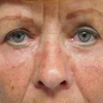 Ooglidcorrectie na - ooglidcorrectie van de bovenste en onderste oogleden