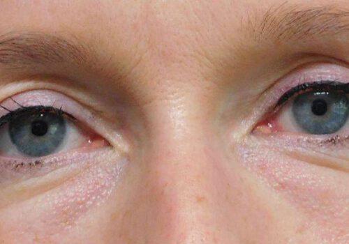 Bovenooglidcorrectie - resultaat ooglidcorrectie