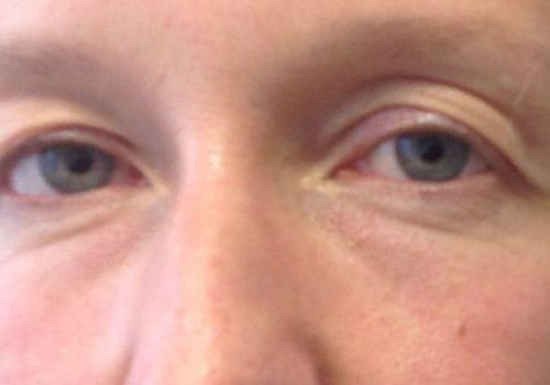 Ooglidcorrectie bovenste oogleden voor
