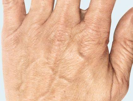 Oude handen voor de behandeling