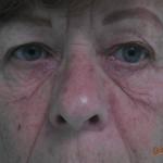 Wallen onder de ogen verwijderen - ooglidcorrectie