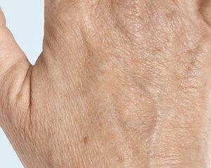 Behandeling oude handen met filler Radiesse