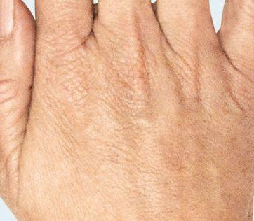 Oude handen behandeling met Radiesse