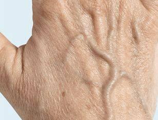 Oude handen voor behandeling met fillers