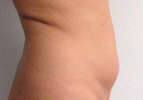 Anoniem - liposuctie buik en lovehandles - - before
