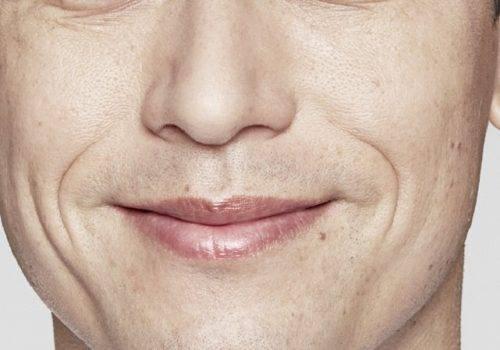 John - neuslippenplooi - Voor