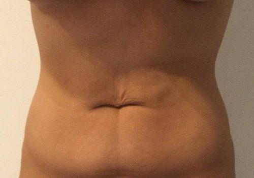 Liposuctie buik en lovehandles voor