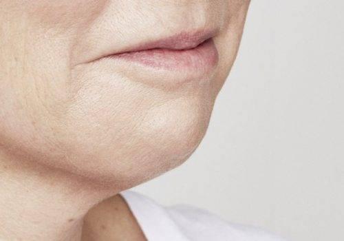 Marie - Fillers kin - Na