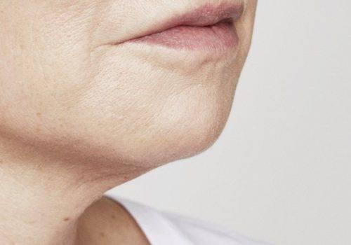 Marie - Kin fillers - Na