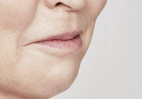 Marie - Lipfillers - Na