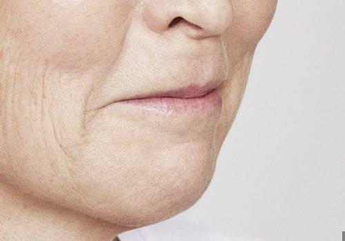 Marie - Lipfillers - Voor