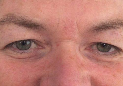 Mw Otto - Hangende oogleden Voor - drs. Fabré