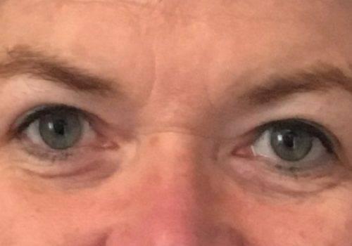 Mw Otto - Hangende oogleden resultaat - drs. Fabré