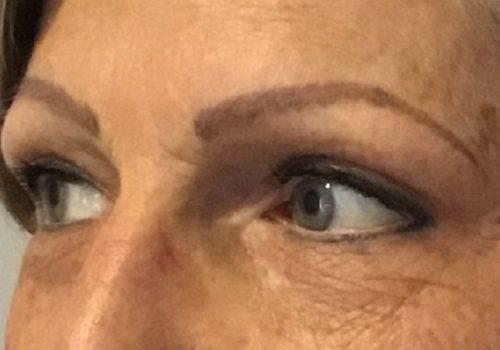 Renata - 51 jaar - na bovenooglidcorrectie - drs Gerd Fabré - zijaanzicht