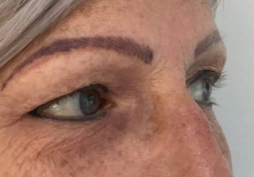 Renata - 51 jaar - voor bovenooglidcorrectie - drs Gerd Fabré - zij aanzicht