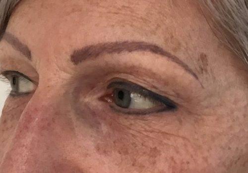 Renata - 51 jaar - voor bovenooglidcorrectie - drs Gerd Fabré - zijaanzicht