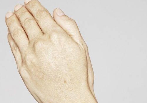 Restylane Skinbooster handen - handverjonging na
