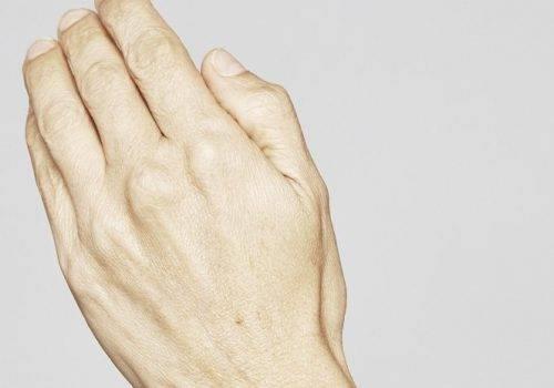 Restylane Skinbooster handen - handverjonging voor