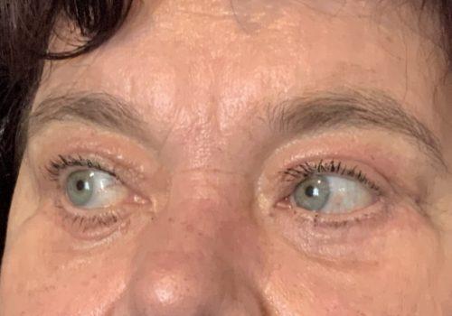 Hangende oogleden en wallen na