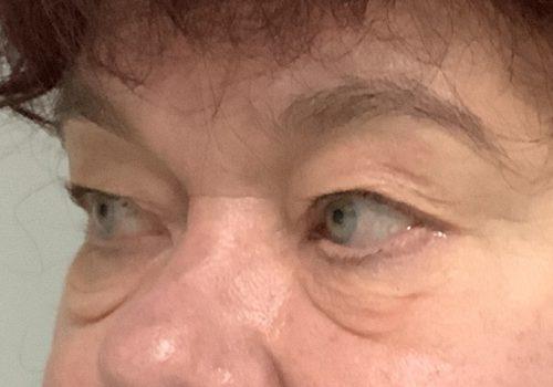 Hangende oogleden en wallen voor