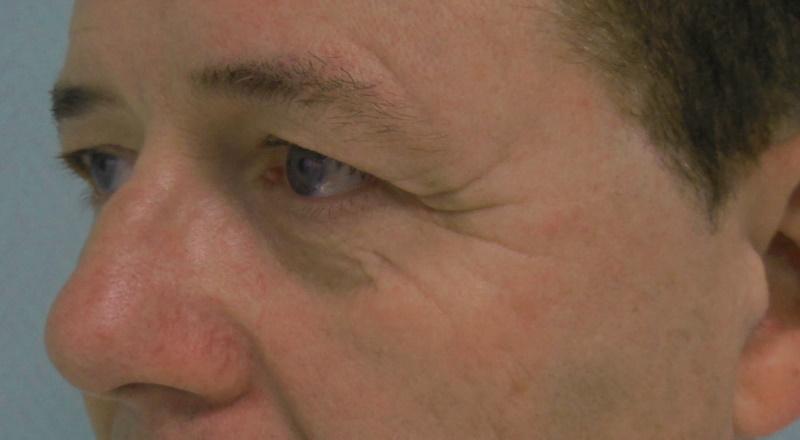 Jan - ooglidcorrectie voor 45 graden links