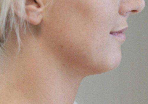 Liposuctie onderkin na