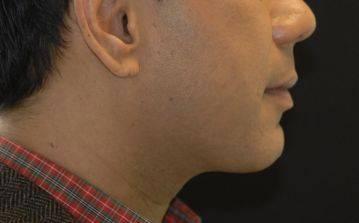 Liposuctie onderkin resultaat