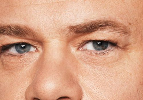 Man rimpels onder de ogen na