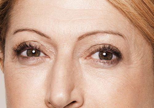 Rimpels onder de ogen after