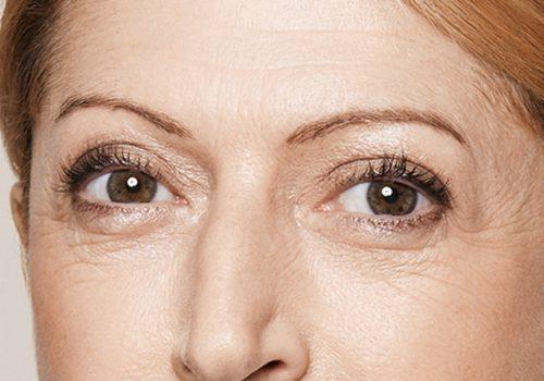 Rimpels onder de ogen before