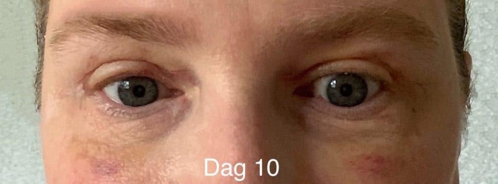 Herstel na een ooglidcorrectie - dag 10