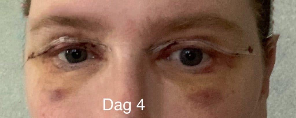 Herstel na ooglidcorrectie - dag 4