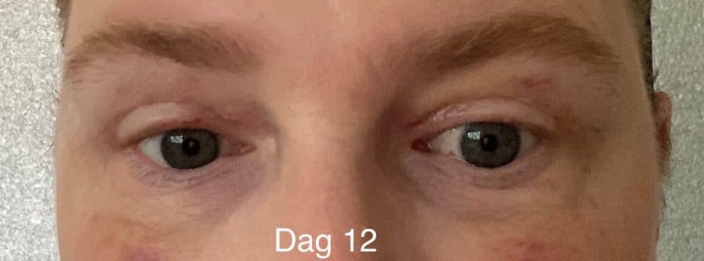 Herstel ooglidcorrectie - dag 12
