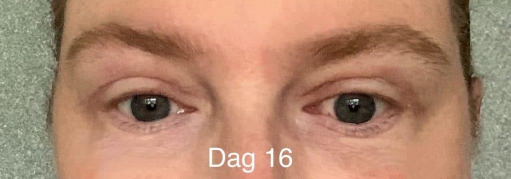 Herstel ooglidcorrectie - dag 16