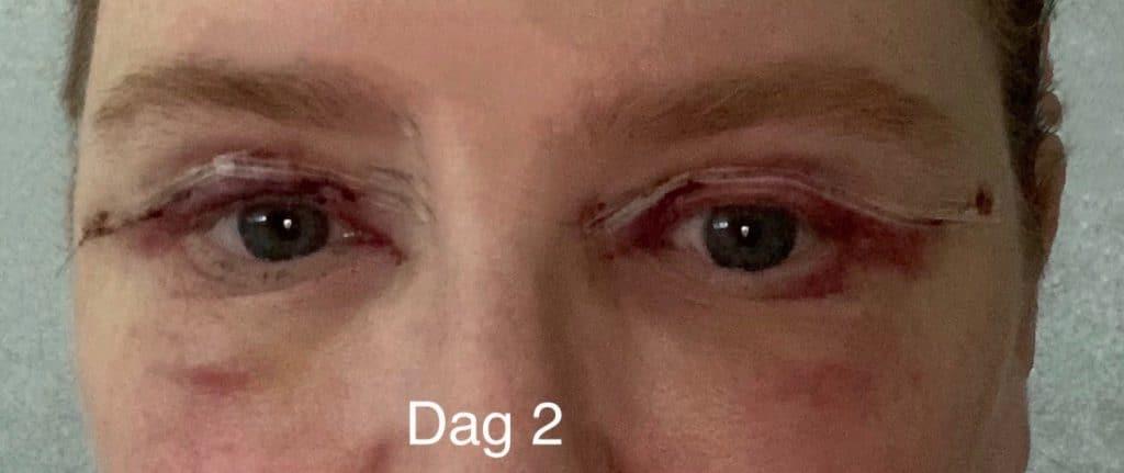 Herstel ooglidcorrectie - dag 2