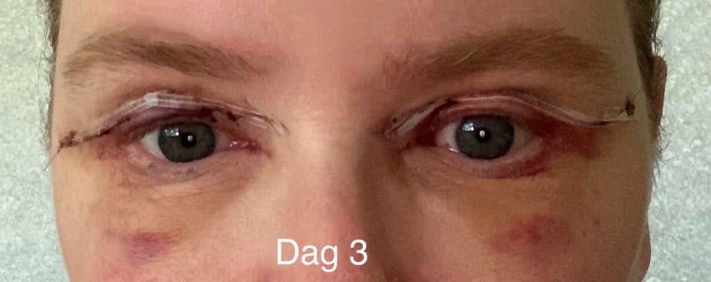 Herstel ooglidcorrectie - dag 3