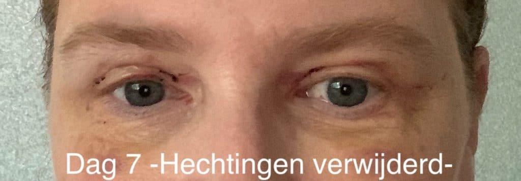 Herstel ooglidcorrectie - dag 7 - verwijderen hechtingen