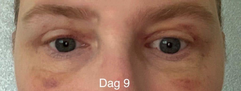 Herstel ooglidcorrectie - dag 9