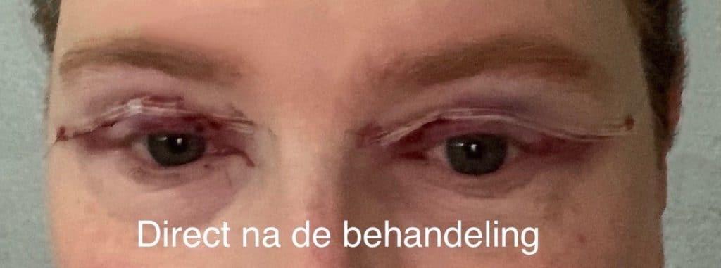 Herstel ooglidcorrectie - direct na de behandeling