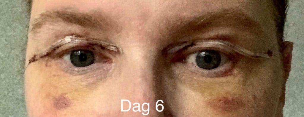 Herstellen na een ooglidcorrectie - dag 6