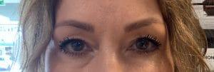 Herstel van een ooglidcorrectie in beeld - voor de ingreep