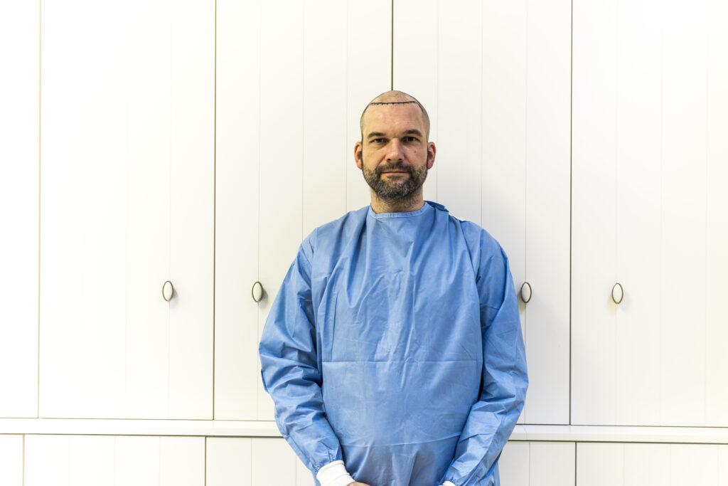 Arts en cliënt haartransplantatie voor