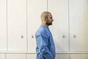 Haartransplantatie Arjan Benning - voorfoto rechts