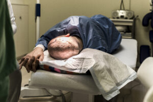 Haartransplantatie Arjan Benning - verdoving is toegediend