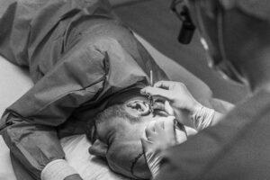 Haartransplantatie Arjan Benning - fue extractie