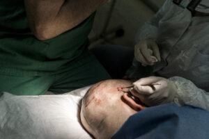 Haartransplantatie Arjan Benning - haartjes verwijderen