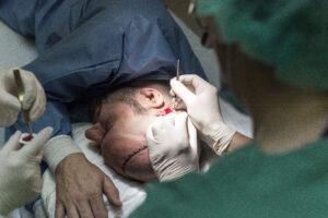 Haartransplantatie Arjan Benning - haartjes verwijderen 2