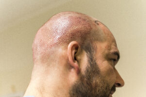 Haartransplantatie Arjan Benning - donorgebied bereid