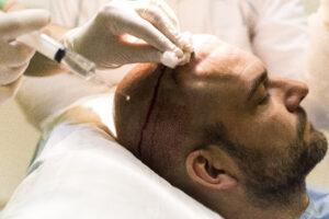 Haartransplantatie Arjan Benning - verdoving kale gebied