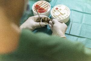 Haartransplantatie Arjan Benning - de weggenomen haartjes worden teruggezet